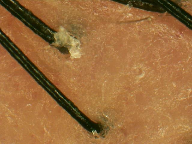 ハイグレード ザクロ 精炭酸 シャンプー使用前画像.jpg