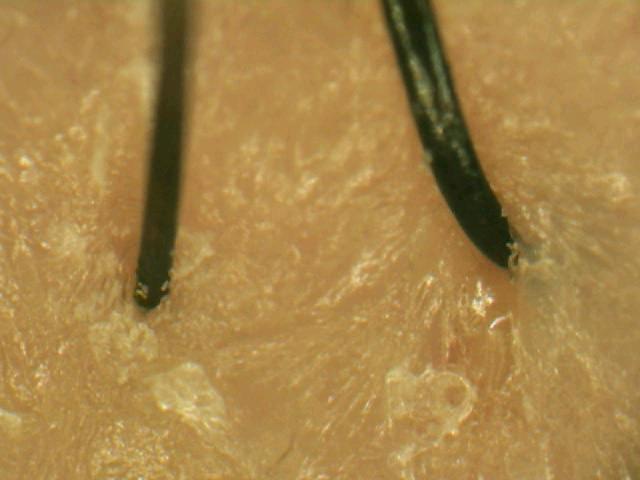 ヘアメディカル スカルプD OILY スカルプシャンプー SJ18[脂性肌用]使用後画像.jpg